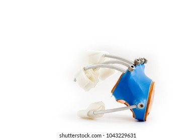 focal dystonia rehabilitation splint for the hand for sensory motor retuning method