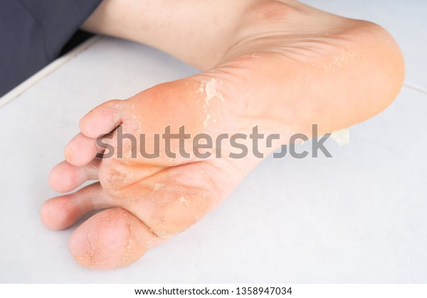 Foot Allergic Chemicals Skin Diseases Symptoms Stock Photo