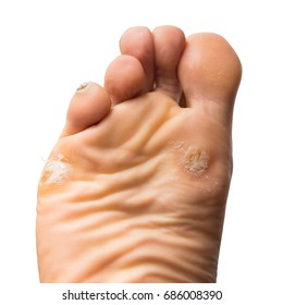foot corn - calluses skin isolated with clipping path