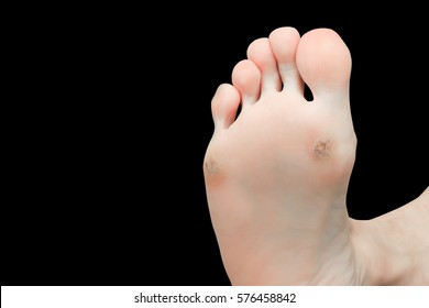 foot corn isolated on black background with clipping path