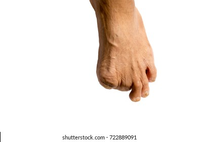 Foot of Diabetes Toes cut to inhibit the spread of disease Not to spread to other parts of the body with white background