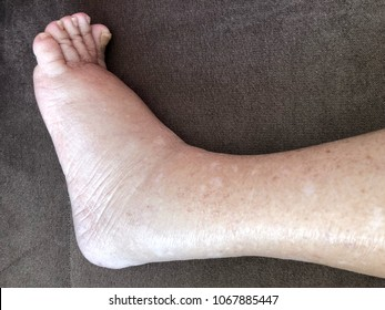 Foot of diseased female patient who suffers from edema illness