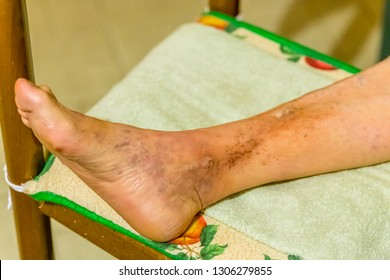 Foot of elderly woman with phlebitis, edema and infection on chair