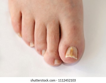 Foot with fungal toe nail infection