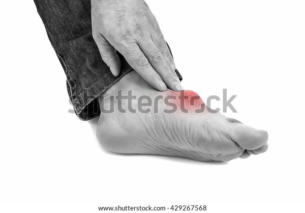 痛风的脚 隔离在白色。