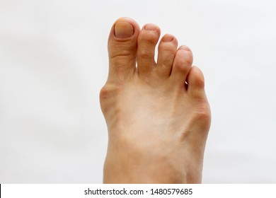 foot with gout on the bones on white background