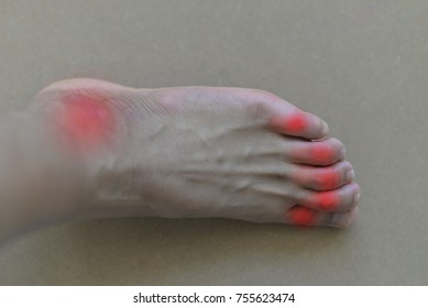 Foot of gout patient.Close up Painful and inflamed gout.