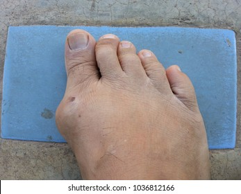 The foot of the gout.Cube at the foot and break.white crystalline flow. Buildup of uric acid crystals in a joint causes gouty arthritis. Gout symptoms and signs include joint pain, swelling, heat, and