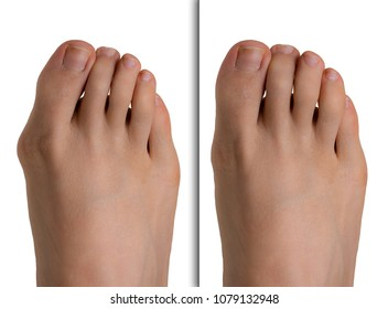 Foot with hallux valgus before and after corrective surgery
