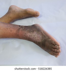 Foot infections are burnt black and peeling.