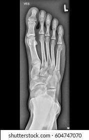 Foot medical xray, lower limb bones