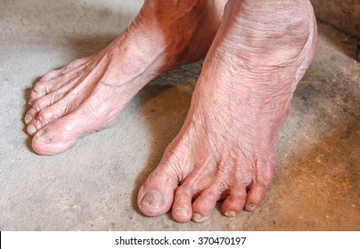 foot of old woman no.1, elderly health care promotion