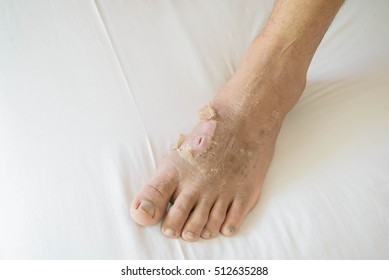 foot peel on white background