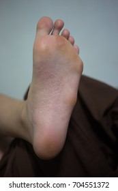 Foot problems, Psoriasis, Dermatitis