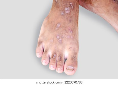Foot Scars from Diabetes,Foot ulcers of lymphatic disease, cancer.