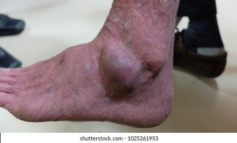 Foot Subcutaneous swelling or Lipoma.
