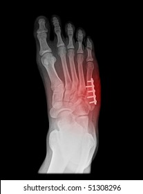 foot surgery of a jones fracture on black background