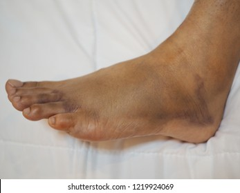 foot swelling and Bruise, broken foot close up.