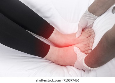 Foot swelling during pregnancy.,Swollen feet