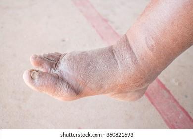 Foot swelling on diabetic Nephropathy