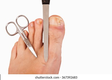 Foot With Toenail Fungus Scissors And File Isolated