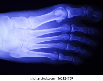 Foot and toes injury x-ray scan orthopedics and Traumatology radiology test results photo.