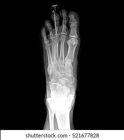 Foot and toes medical x-ray test scan result for adult showing orthopedic Traumatology titanium metal plate implant image
