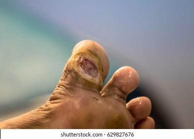 Foot ulcer, Gangrene at big toe.