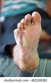 Foot ulcers from diabetes