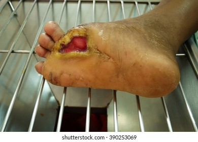 Foot ulcers from diabetes , selective focus.