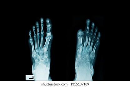 foot x-ray, x-ray image of diabetes patient with cutted big toe, infected wound of diabetes patient with post amputated a big toe right side