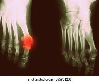 Foot Xray (X-ray) photo