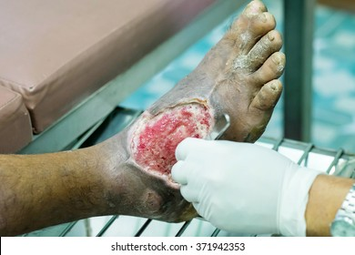 foot,treating patients with foot ulcers,Diabetic Foot Ulcer