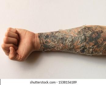 Forearm Tattoo Healing Process Skin Pealing