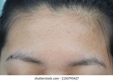 Forehead between the eyebrows and the hair.