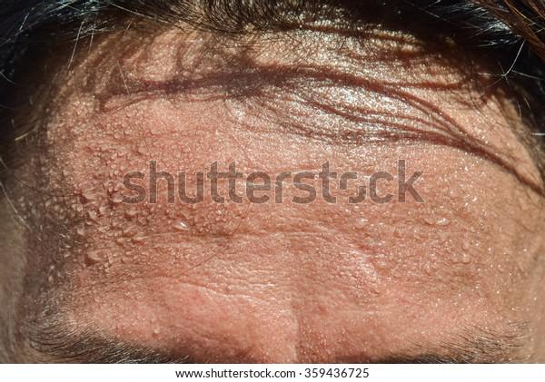 forehead sweat
