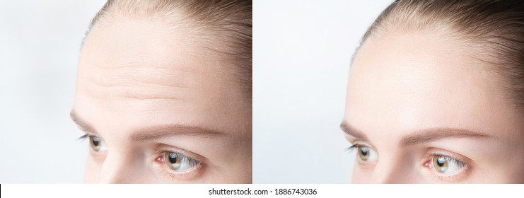 Forehead wrinkles before and after mefotherapy injection, treatment, surgery. Womans face close up.