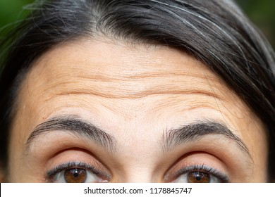 Forehead wrinkles close up
