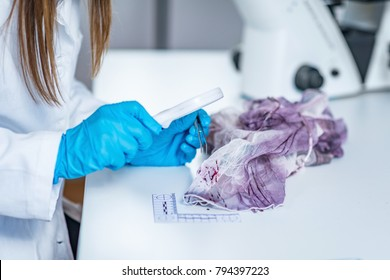 Forensic science expert examining traces of blood on a piece of cloth collected at a crime scene