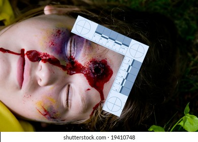 Forensically accurate photo of a teen with a bullet wound