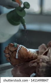 Formalin is used during embalming processes as a disinfectant and preservative of the human body.