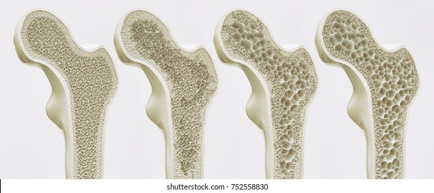 The four stages of osteoporosis - illustration