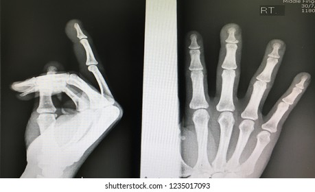 Fracture base of distal phalanx
