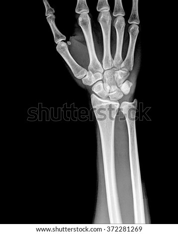 Fracture Distal Radius Wrist Bone Stock Photo Edit Now 372281269