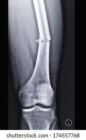 Fracture of the femur