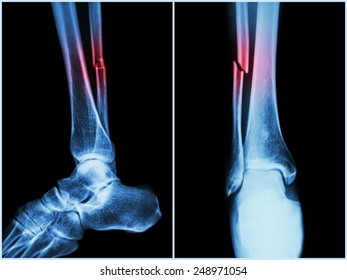 Fracture fibula ( leg bone ) .  X-ray of leg ( 2 position : side and front view )