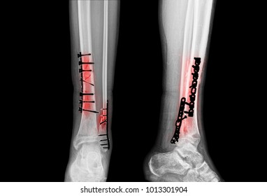 Fracture of leg bones. Reposition of bones with plates with screws