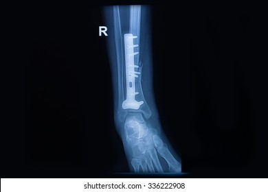 Fracture of the lower part of the fibula, sagital view X-ray