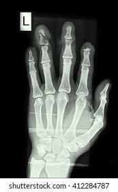 Fracture ring finger left hand