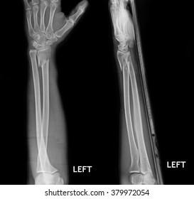 fracture shaft of radius & ulnar bone, x-ray film